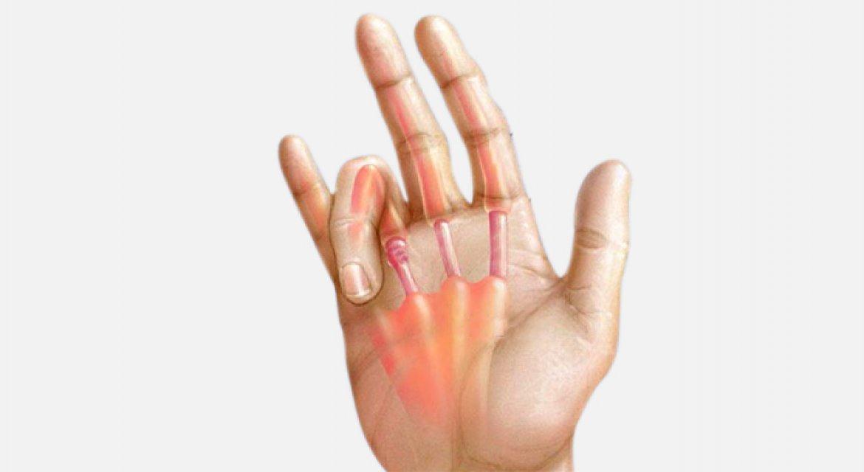 Schnellender Finger | Praxis Feinstein